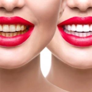 Advantage and Disadvantage of tooth bleaching
