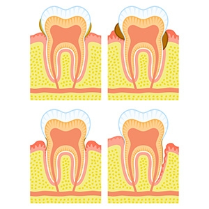 What is the cause of Gingival Recession? How to prevent it?