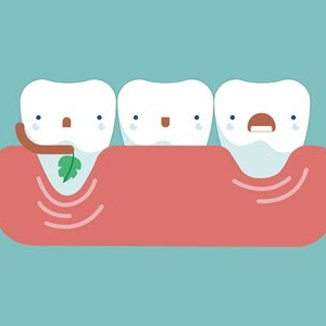 How to prevent the gingival recession?