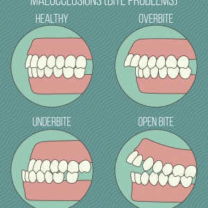 Does the malocclusion (bite problems) effect your daily life?